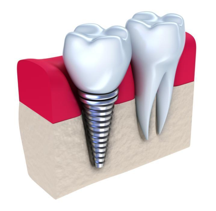 dental implants 28204 | harlow dental
