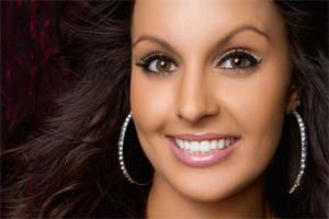 Porcelain Veneers Charlotte NC | Harlow Dental at Steele Creek