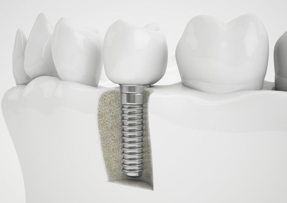 Dental Implant | Charlotte NC Dentist