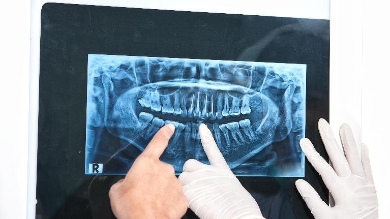 dental x-ray | Dentist Charlotte NC