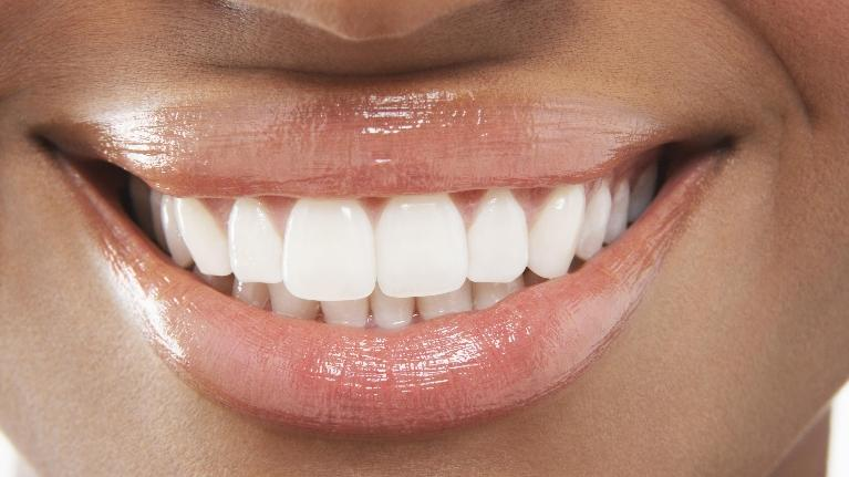 Close-Up of a Woman's Smile | Dental Implants in Charlotte