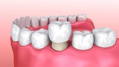 dental crowns in charlotte nc