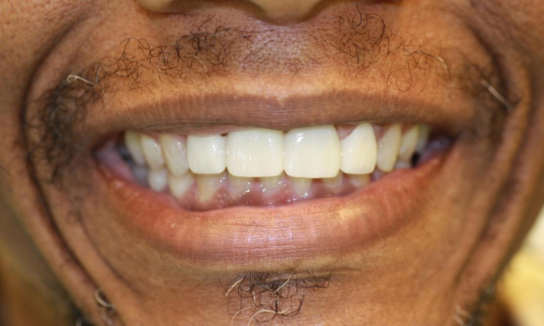 image of the same teeth after dental bridge in Charlotte nc