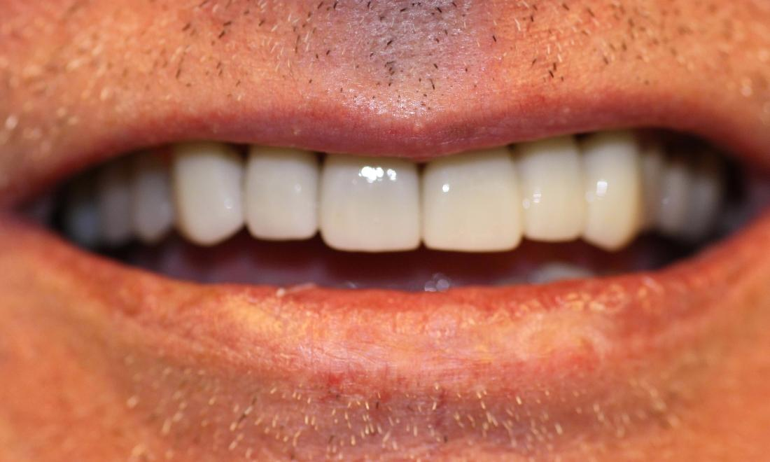 image of the same teeth after cosmetic crowns in Charlotte nc