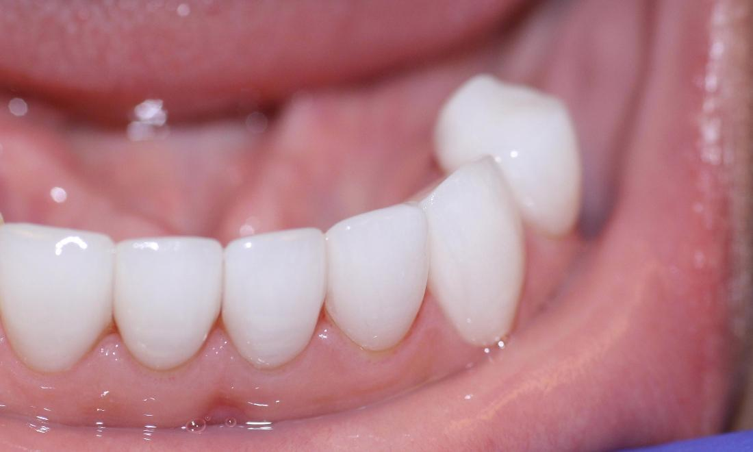 image of same teeth after cosmetic crowns Charlotte nc