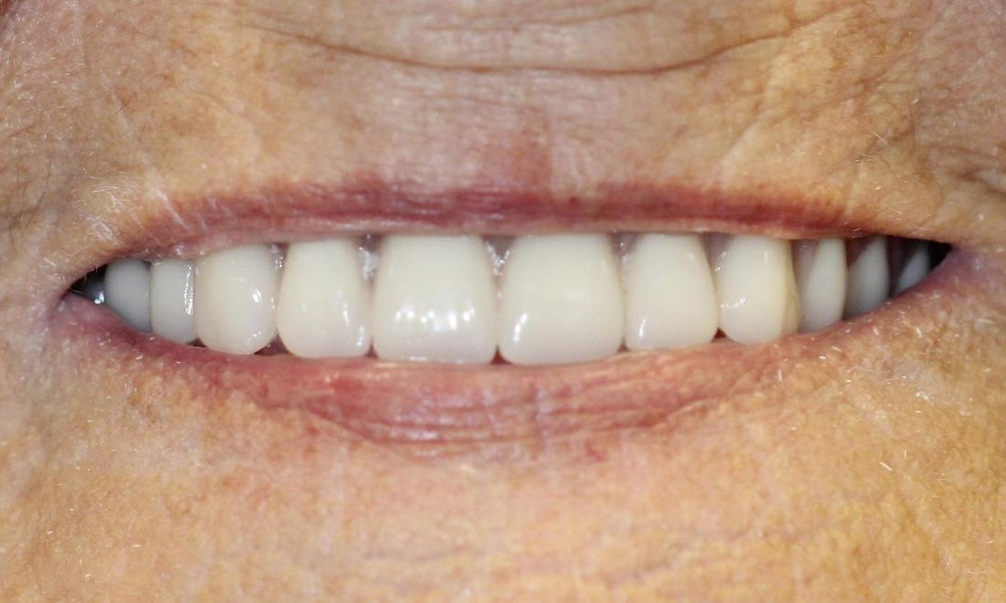 image of the same patient after modern dentures in Charlotte nc
