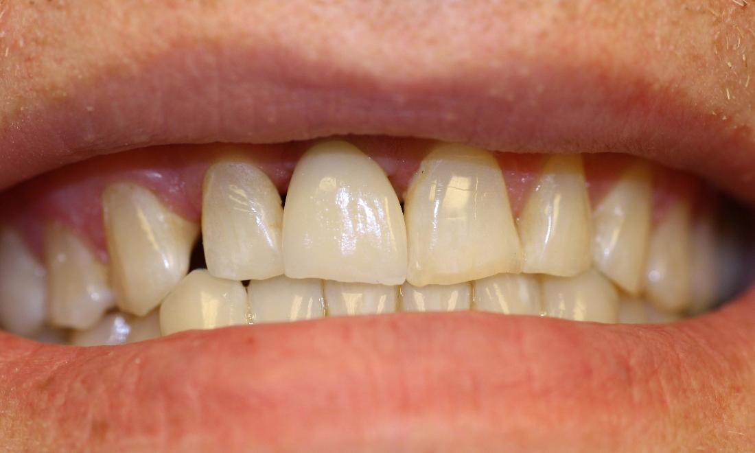 image of teeth after dental implant in Charlotte nc