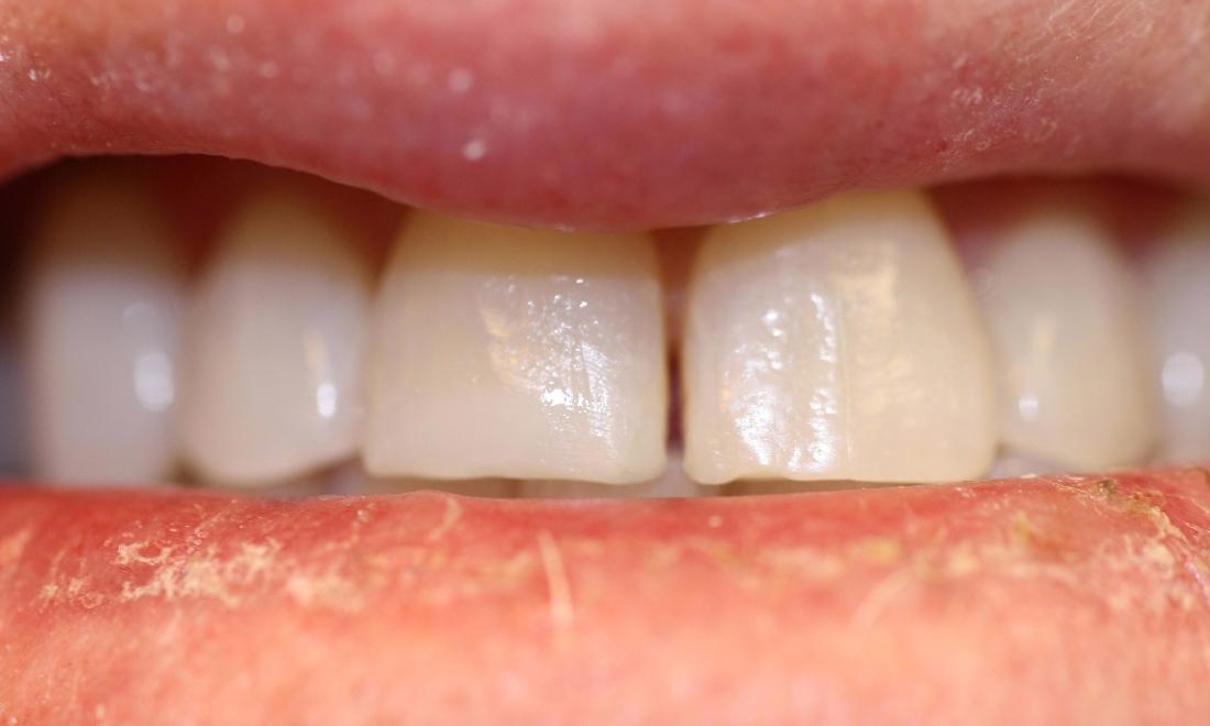 image of the same teeth after ZOOM! whitening in Charlotte nc