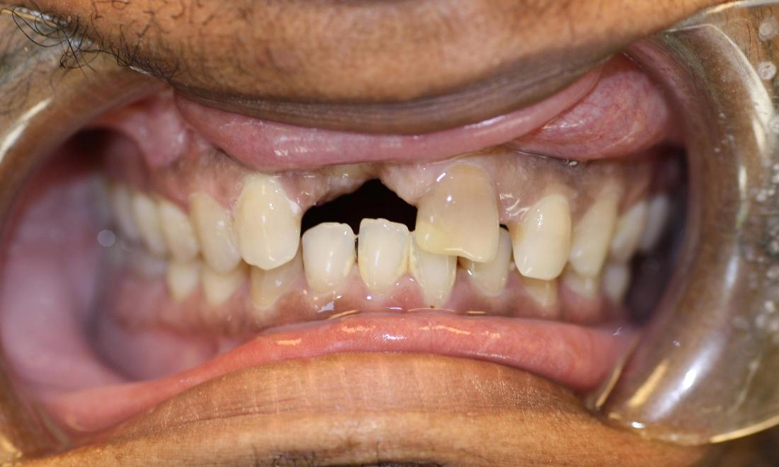 image of teeth before dental bridges Charlotte nc