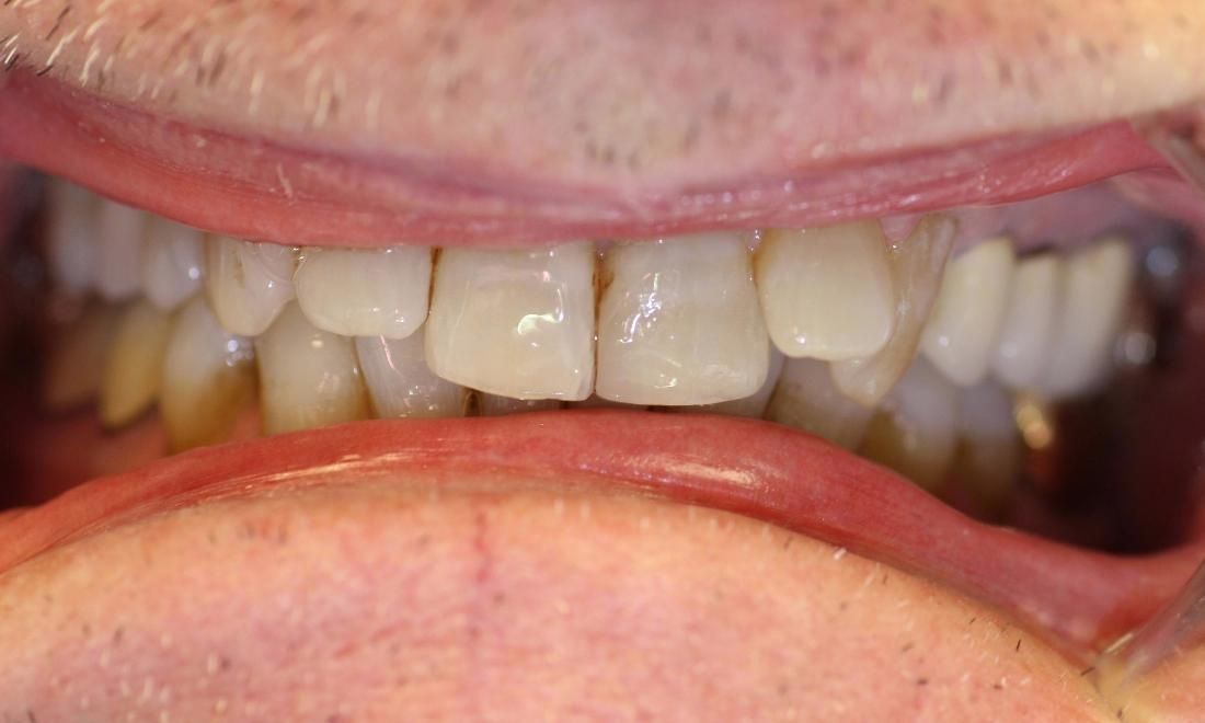 image of teeth before cosmetic crowns in Charlotte nc