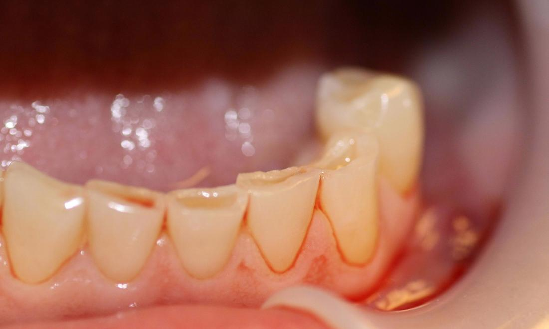 image of teeth before cosmetic crowns Charlotte nc