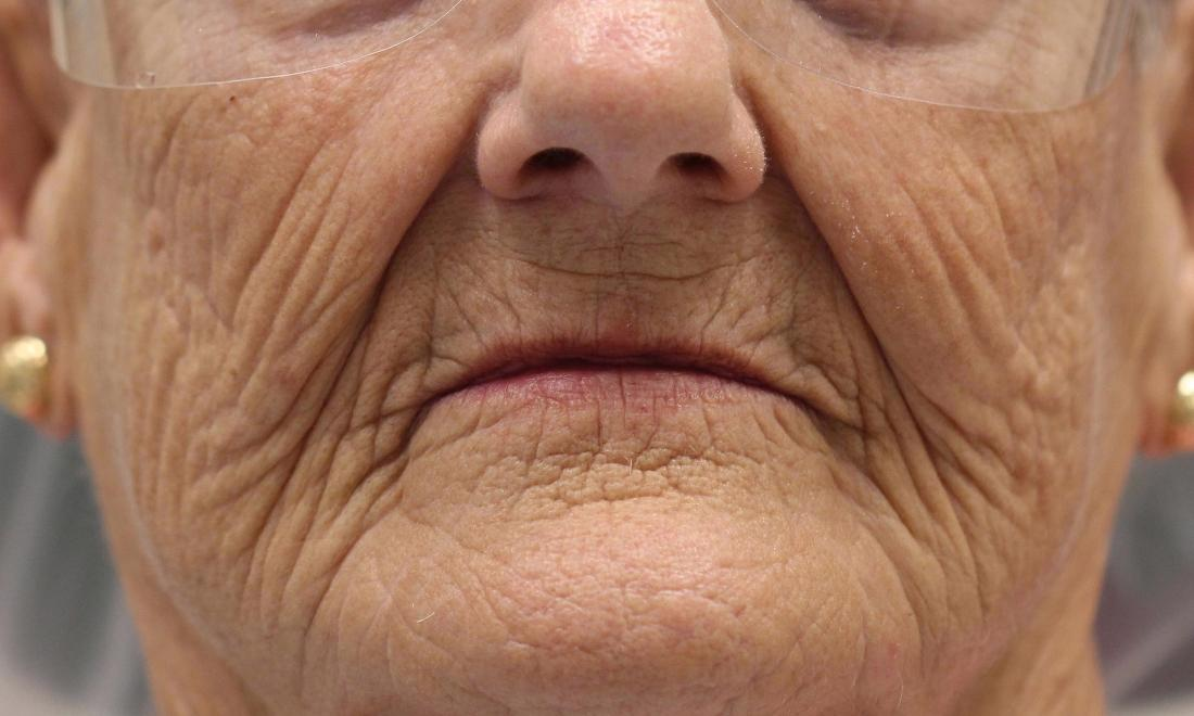 image of patient before dentures Charlotte nc
