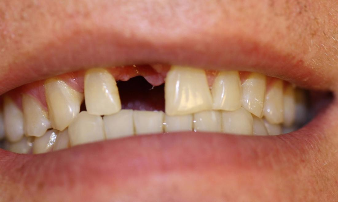 image of teeth before a dental implant Charlotte nc