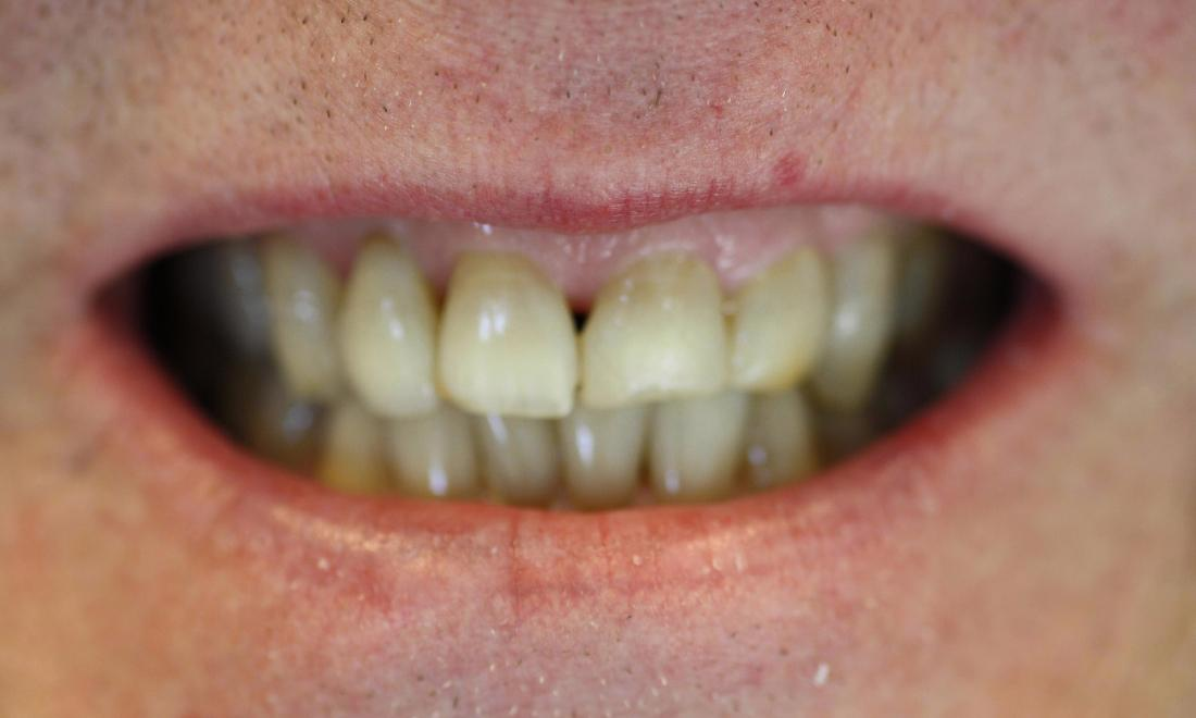 Before | Veneers Patient | Veneers Charlotte