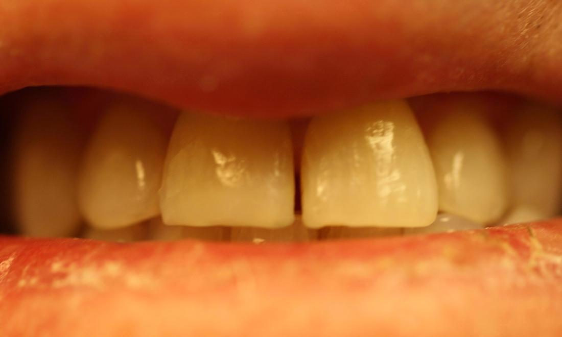 image of teeth before ZOOM! whitening Charlotte nc