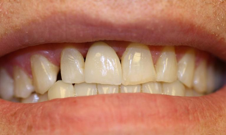 Dental-Implant-in-Charlotte-NC-After-Image