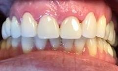 Smile-Transformation-with-Dental-Crowns-in-Charlotte-NC-After-Image