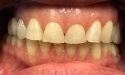 Smile-Transformation-with-Dental-Crowns-in-Charlotte-NC-Before-Image