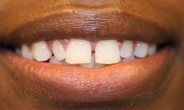 Veneers-Before-Image